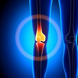 Choroba zwyrodnieniowa kolana