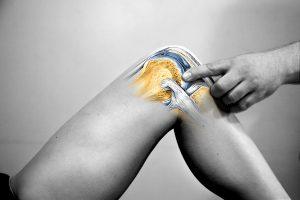 rehabilitacja kolan, kolano kinomana rehabilitacja