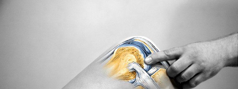 Rehabilitacja kolan- kolano kinomana rehabilitacja