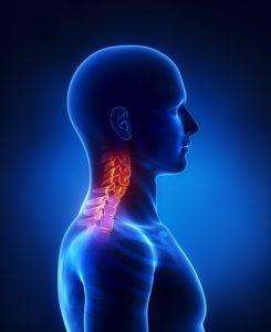 Rehabilitacja bóle szyi